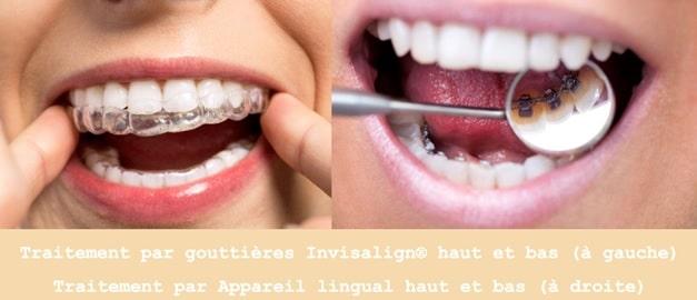 gouttières invisalign vs appareil lingual
